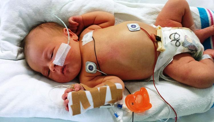 1岁女儿严重营养不良、终身残疾