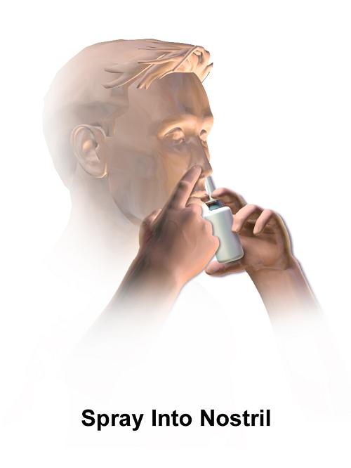 鼻内皮质类固醇喷雾剂