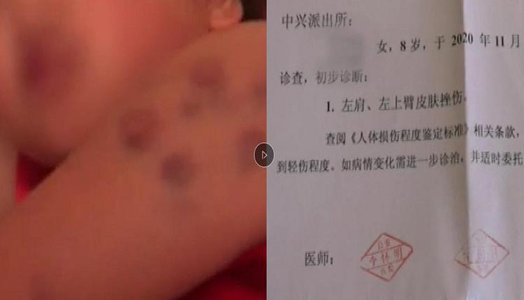 8岁女孩被老师殴打多处受伤 警察称这是法律漏洞不能管