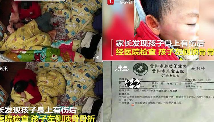 老师狂扇2岁幼儿 导致男童头部骨折