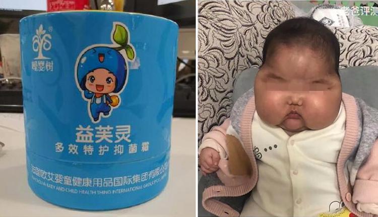 婴儿使用抑菌霜两个月成大头娃娃