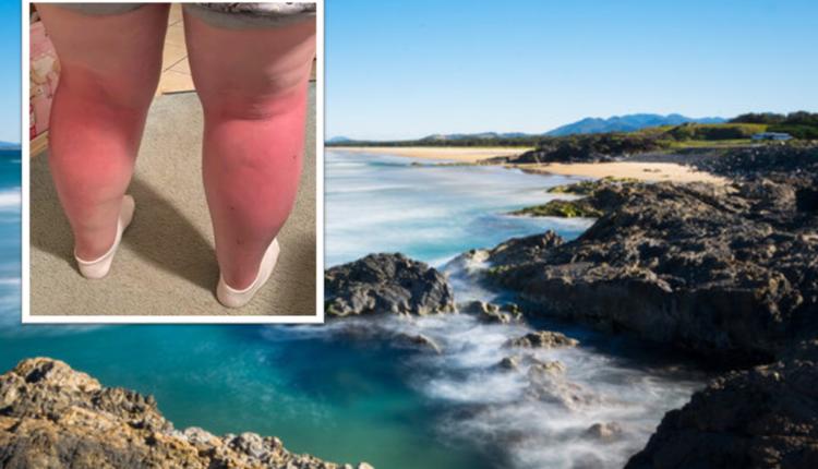 澳洲家庭海滩度假被灼伤