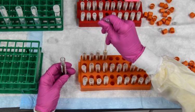 COVID-19疫苗实验