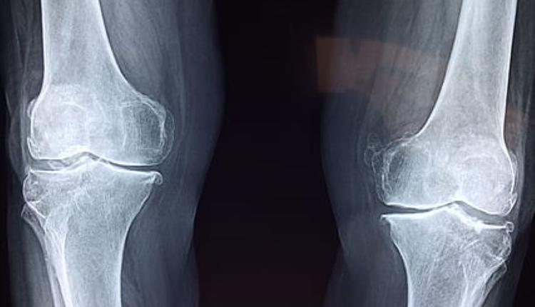 膝盖X射线