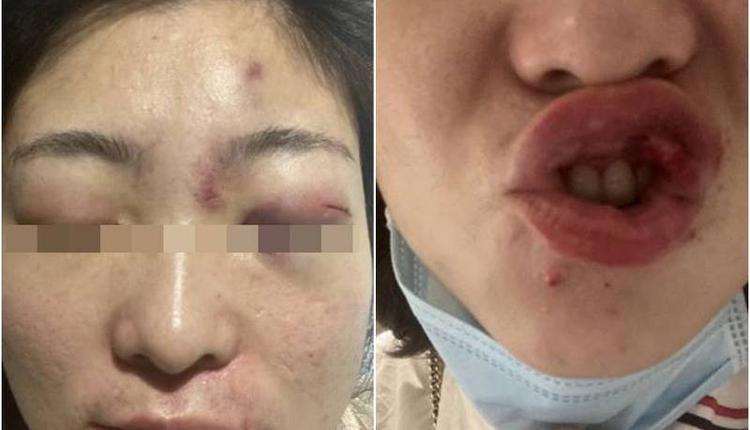 女子提供自己当晚过后脸上的伤势照